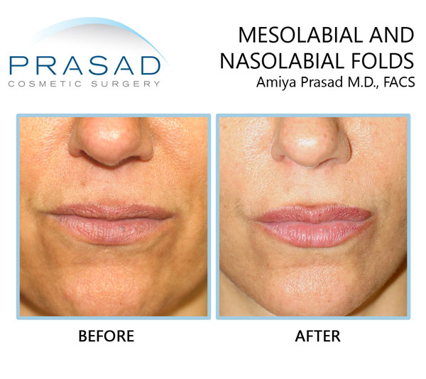nasolabial folds and mesolabial folds treated with cosmetic filler