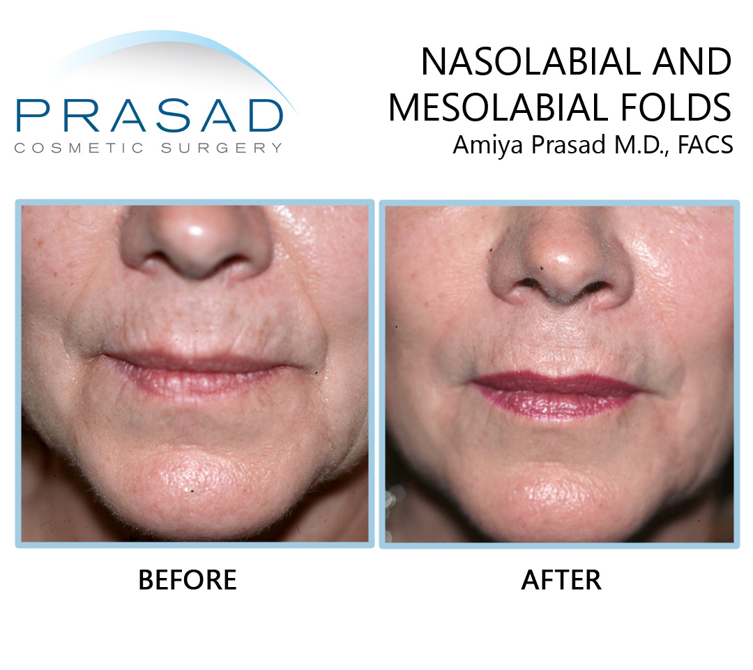 Nasolabial and mesolabial folds before and after filler treatment