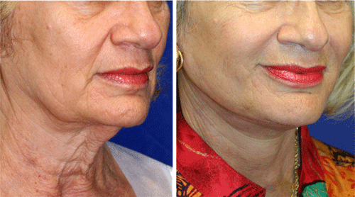 necklift rejuvenation patient