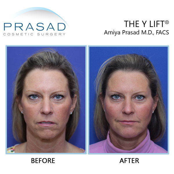 Structural Volumizing by Dr. Amiya Prasad