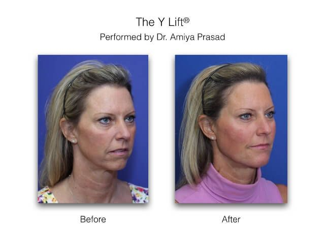 Facelift without Surgery, and Adding Facial Volume at a Deeper Level - Y  Lift® by Dr  Amiya Prasad