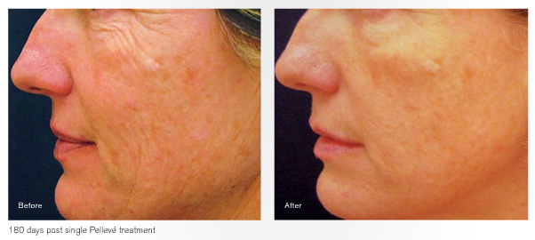 Pelleve™ treatment before and after