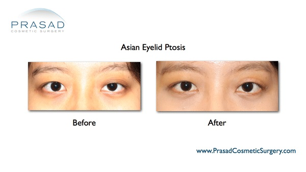 Ptosis Surgery Asian Dr Prasad