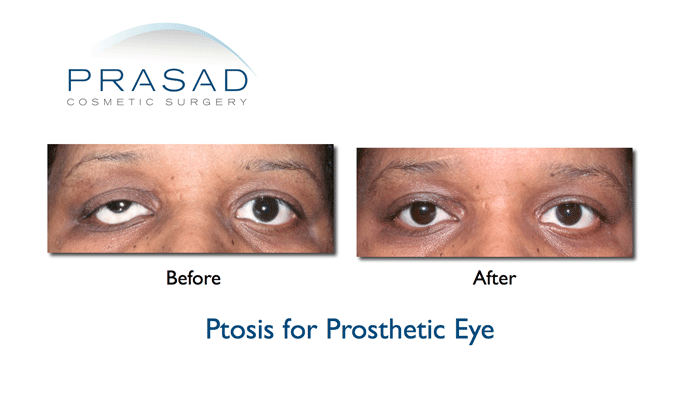 Ptosis surgery- Drooping eyelids -before and after