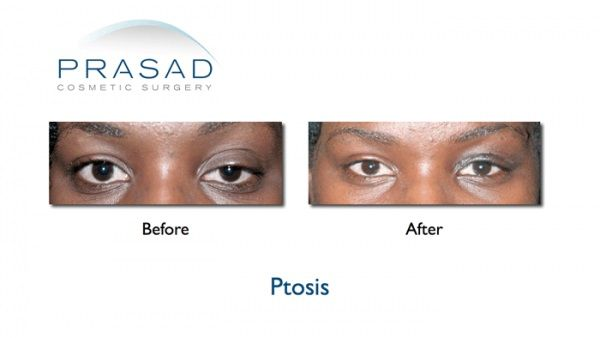 Ptosis Surgery in New York