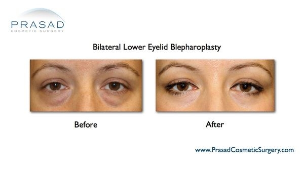 Lower Eyelid Surgery