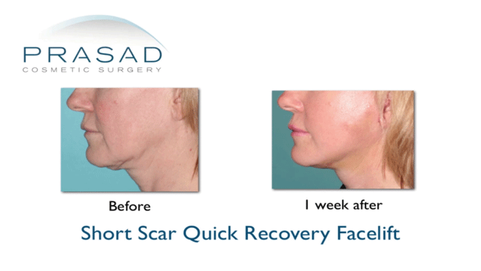 Short Scar Quick Recovery Facelift - limited jawline procedure