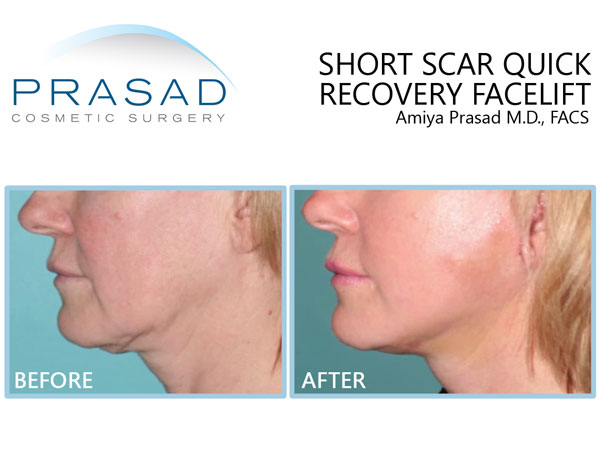 Before and 1 week after short scar quick recovery facelift