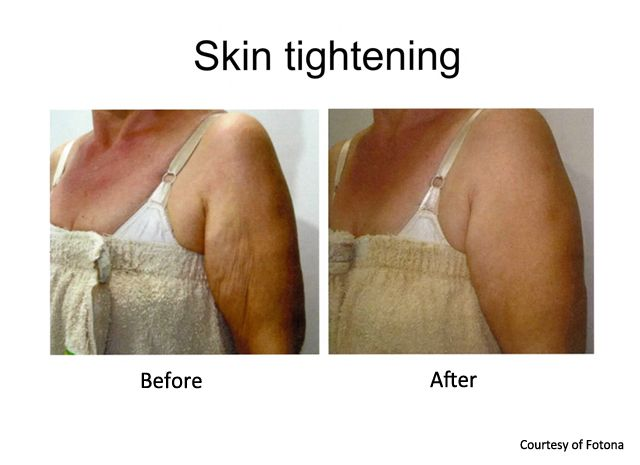 skin tightening arms