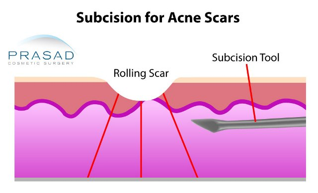 subcision procedure for acne scars
