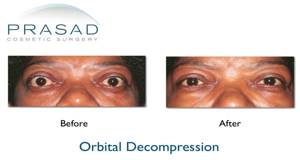 orbital decompression surgery before and after