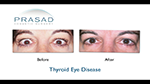 before and after thyroid eye surgery