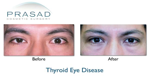 Thyroid Eye Disease Graves Disease Prasad Cosmetic Surgery Ny