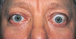 patient with thyroid eye disease