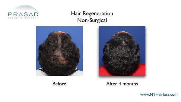 man suffering from hair loss on crown area treated with hair regeneration
