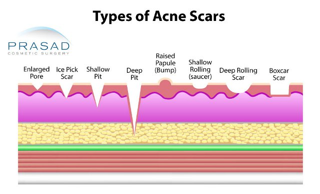 different types of acne scar