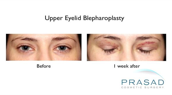 Upper Eyelid Surgery 1 week before and after