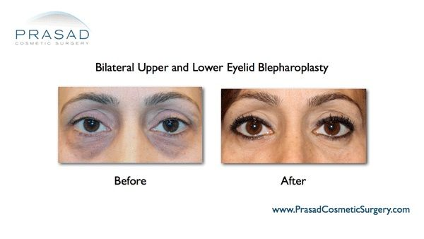 Upper and lower eyelid surgery with Co2 laser