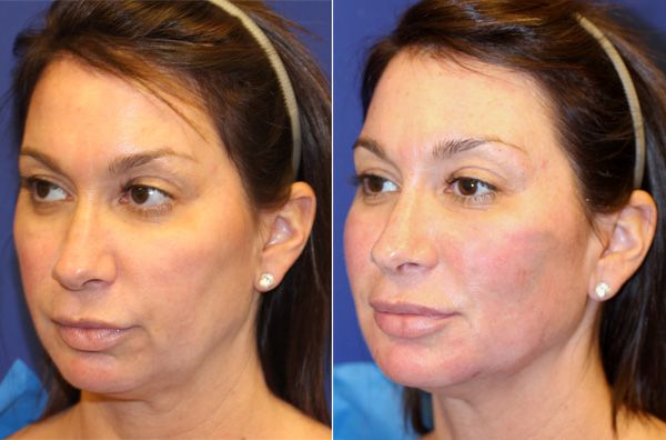 Vampire Facelift | Liquid Facelift |Non Surgical Facelift| NY