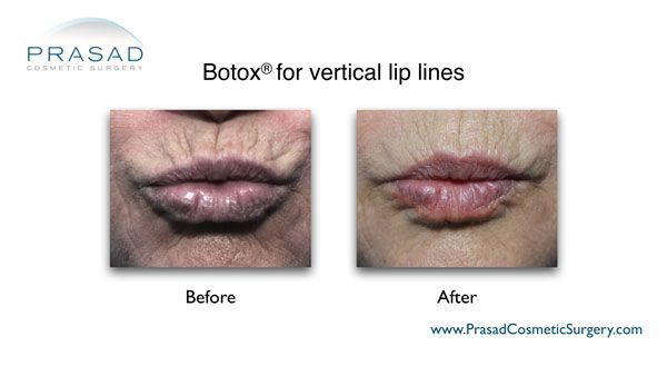 Botox for vertical lip lines before and after treatment