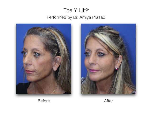 liquid facelift performed by Dr. Amiya Prasad