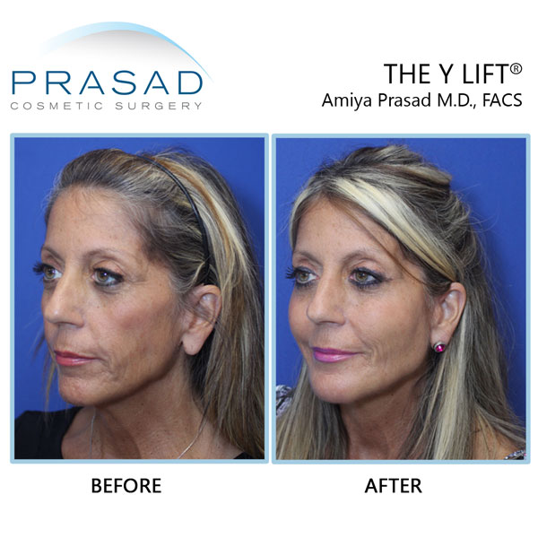 Before and after of Structural Volumizing performed by Dr. Prasad