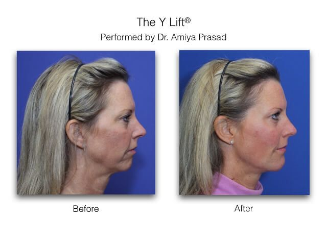 Y Lift- side view- Amiya Prasad Md
