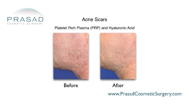 acne scars PRP treatment before and after, procedure done at Prasad Cosmetic Surgery NYC
