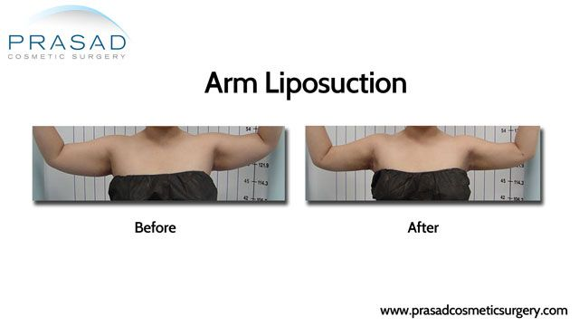 arms liposuction before and after