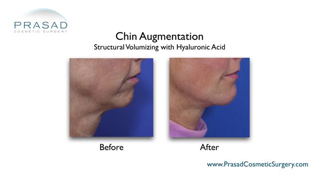 chin augmentation before and after photo