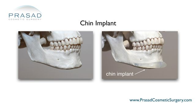silicone chin implant anatomical placement