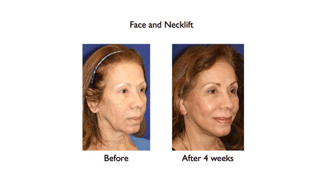 deep plane face and necklift