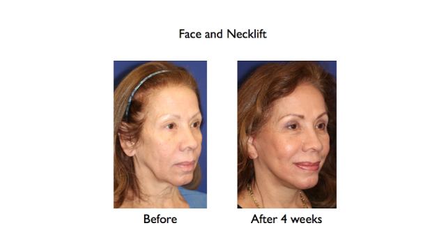 deep plane face and necklift before and after 4 weeks right three quarters
