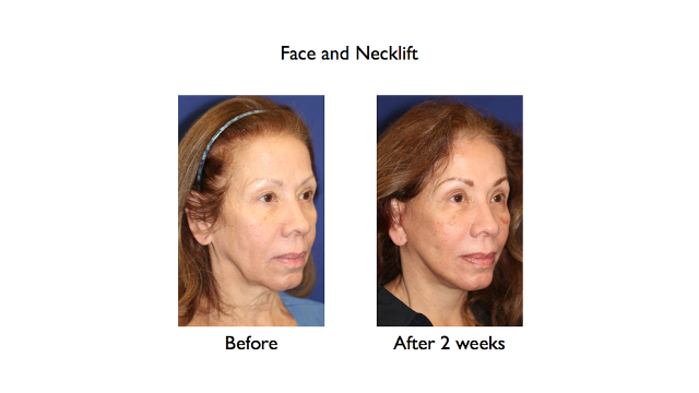 dep plane face and necklift before and after 2 weeks right three quarters
