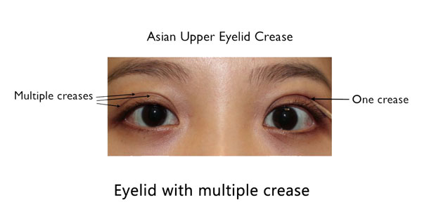 Asian eyelid with multiple crease