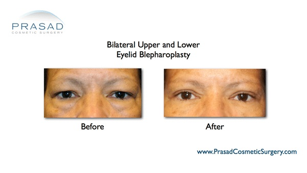 eye lift before and after