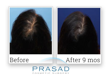 female patterned hair loss treatment review