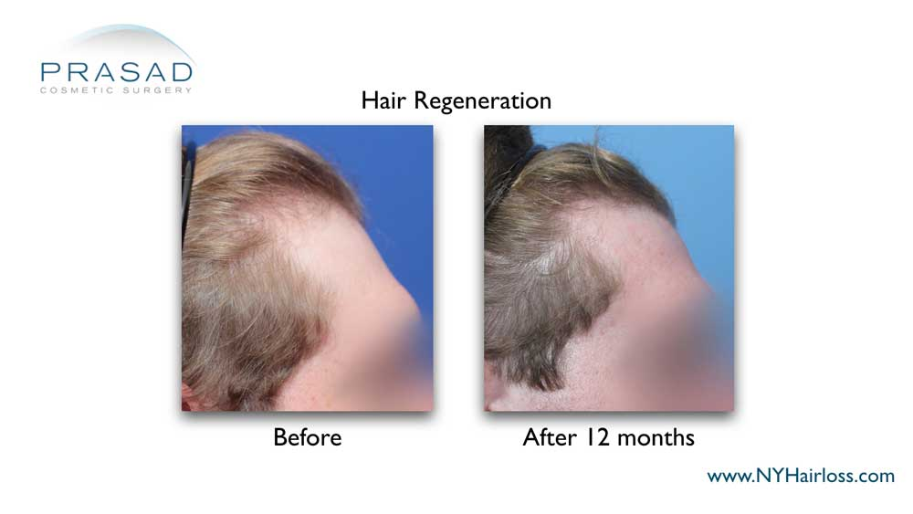 hair growth at the temple after a single Hair Regeneration treatment