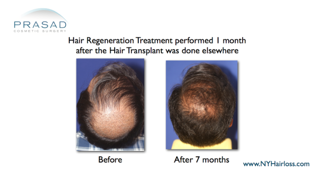 improvement of hair transplant performed 1 month after surgery with hair regeneration results shown after 7 months