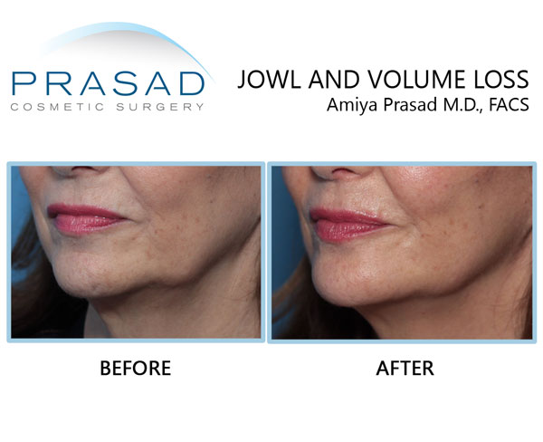 Jowls and jawline improved with cosmetic fillers