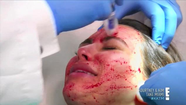 kim kardashian 'vampire facial' procedure