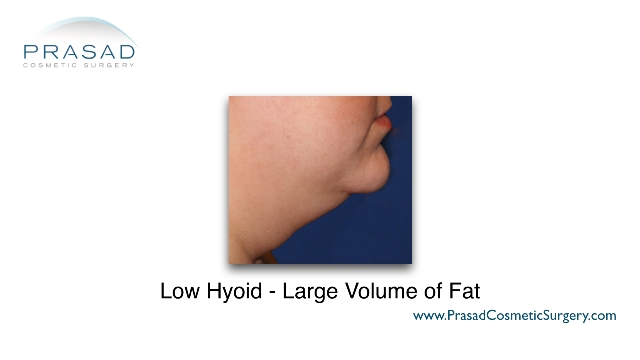 large volume fat under chin due to being overweight