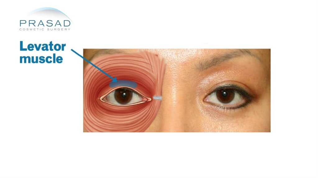 Droopy eyelid-levator muscle
