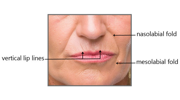 3 types of lines around the mouth