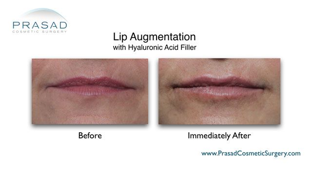 Lip filler placement technique