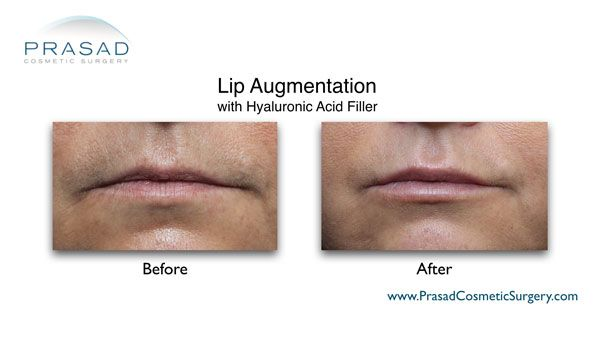 lip enhancement w/ filler like Restylane and Juvederm