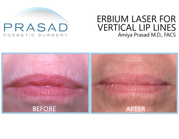 vertical lip lines before and after laser