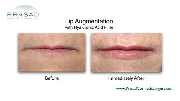 before and immediately after lips enhancement with fillers