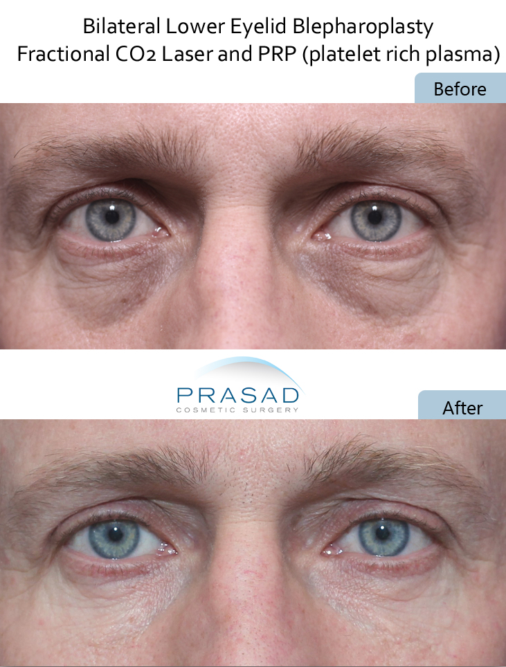 Laser and PRP combined for optimal results