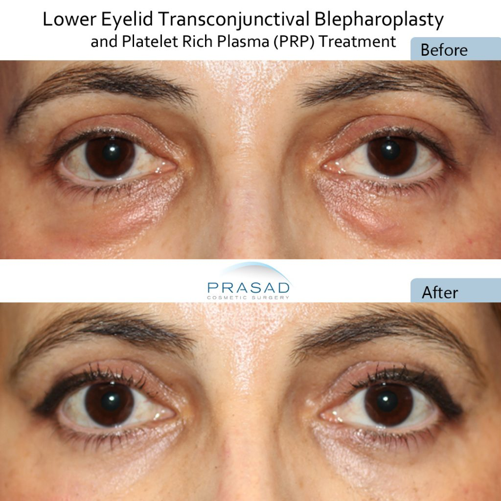 No visible incisions after Transconjunctival blepharoplasty